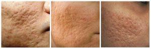 Bạn đã biết: phân loại sẹo và các cách điều trị sẹo hiệu quả?