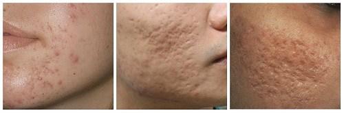 Sẹo mụn và cách điều trị sẹo mụn