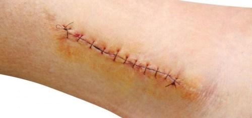 Có nên trị sẹo sau khi cắt chỉ? Làm sao để sau cắt chỉ không để lại sẹo?