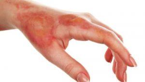 Tuyệt chiêu trị sẹo bỏng nước sôi lâu năm AN TOÀN & NHANH CHÓNG