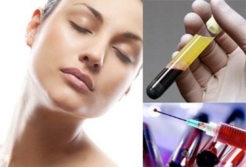 Tế bào gốc trị sẹo lõm là như thế nào? Có nên dùng hay không?