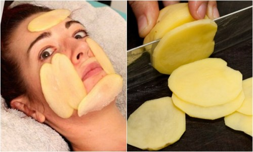 Top 5 mặt nạ trị sẹo lõm và lưu ý để trị sẹo lõm hiệu quả