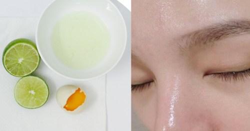 Top 5 mặt nạ trị sẹo lõm và lưu ý để trị sẹo lõm hiệu quả 4