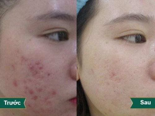 hình ảnh khách hàng trước sau trị sẹo mụn 1