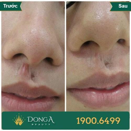 Hình ảnh trước sau trị sẹo tại TMV Đông Á 4