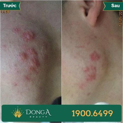 Hình ảnh trước sau trị sẹo tại TMV Đông Á 5