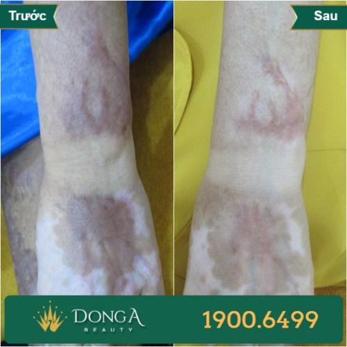 Hình ảnh trước sau trị sẹo tại TMV Đông Á 6