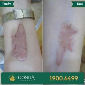 Hình ảnh trước sau trị sẹo tại TMV Đông Á