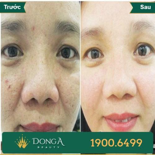 Hình ảnh trước sau trị sẹo tại TMV Đông Á 8