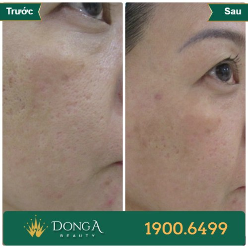 Hình ảnh trước sau trị sẹo tại TMV Đông Á 9