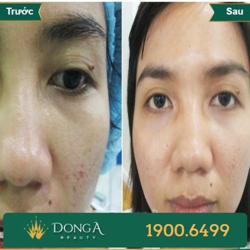 Hình ảnh trước sau trị sẹo tại TMV Đông Á 10