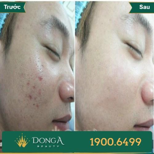 Hình ảnh trước sau trị sẹo tại TMV Đông Á 11