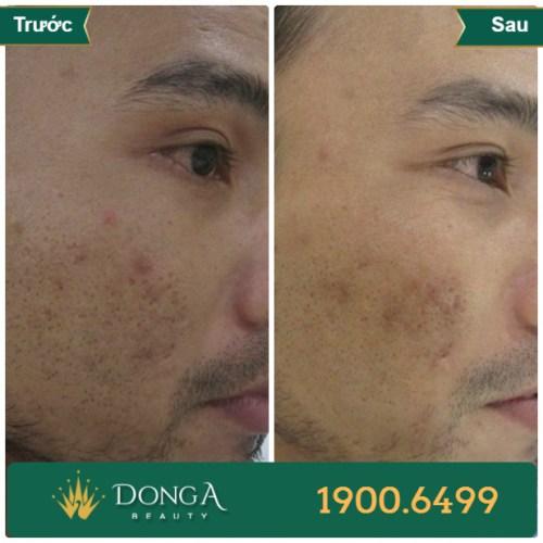 Hình ảnh trước sau trị sẹo tại TMV Đông Á 12
