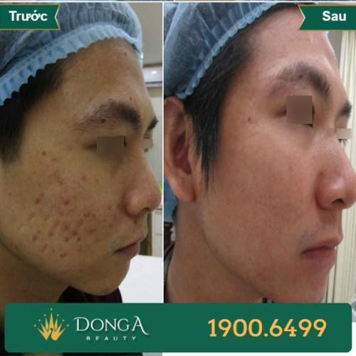 Hình ảnh trước sau trị sẹo tại TMV Đông Á 14