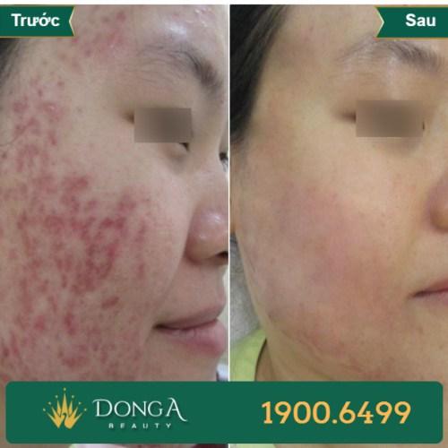 Hình ảnh trước sau trị sẹo tại TMV Đông Á 18