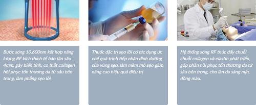 Phẫu thuật cắt sẹo lồi liệu có hết vĩnh viễn như quảng cáo? 2