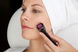 Trị sẹo lõm bằng lăn kim có hiệu quả không? Bác sỹ giải đáp 1